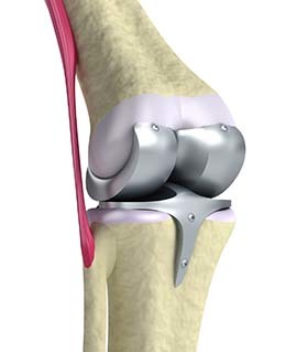 Reinforcement of the joints with Hondrocream
